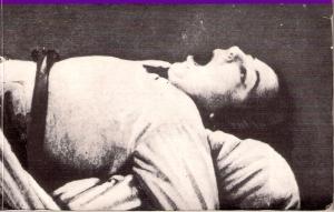 Augustine (ataque histérico). Foto de Régnard, Iconographie photographique de la Salpêtrière (1878)
